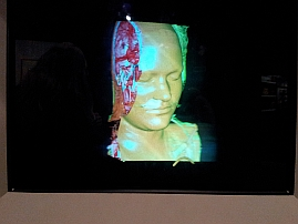 3D holographic representation of a brain scan